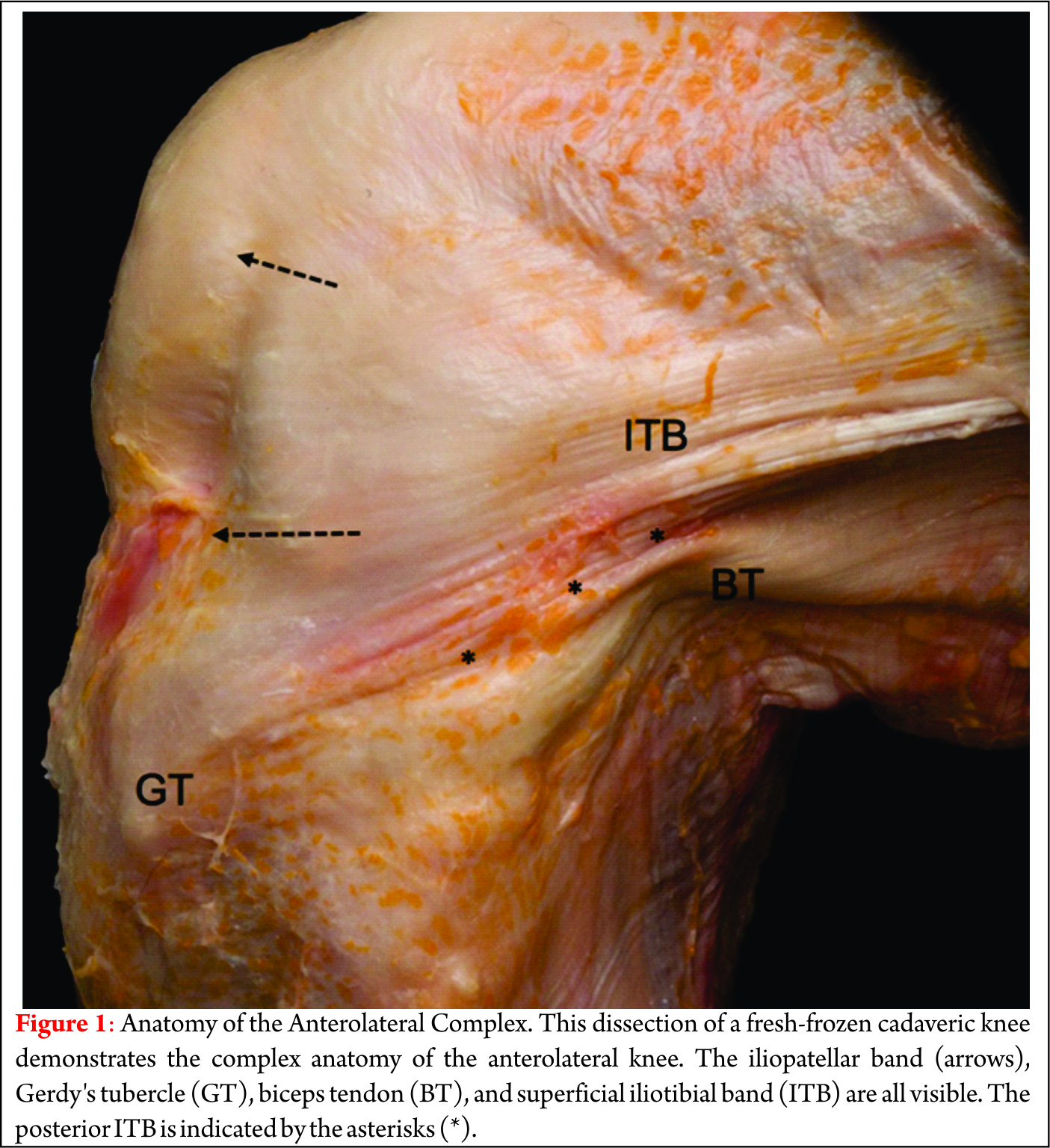 The Anterolateral Complex of the Knee: A Comprehensive Review of Its ...