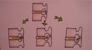 Figure 1: Types of lumbar disc herniation. Protrusion (A), Extrusion (B) and Sequestration (C).